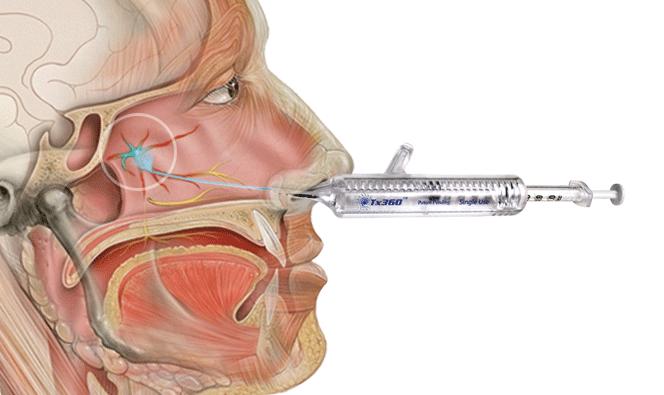 Migraine Relief - Nasal Spray